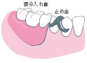 奥歯が数本抜けた場合(部分入れ歯)