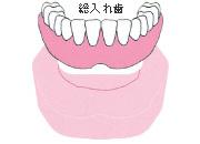 歯が全部抜けた場合(総入れ歯)