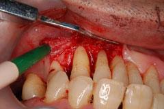 対応1:外科処置