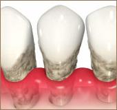 歯周病な歯