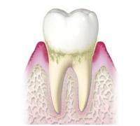 歯周炎《軽度》