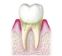 歯周炎《中等度》