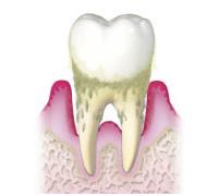 歯周炎《重症》